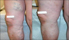 Large varicose veins before and after treatment